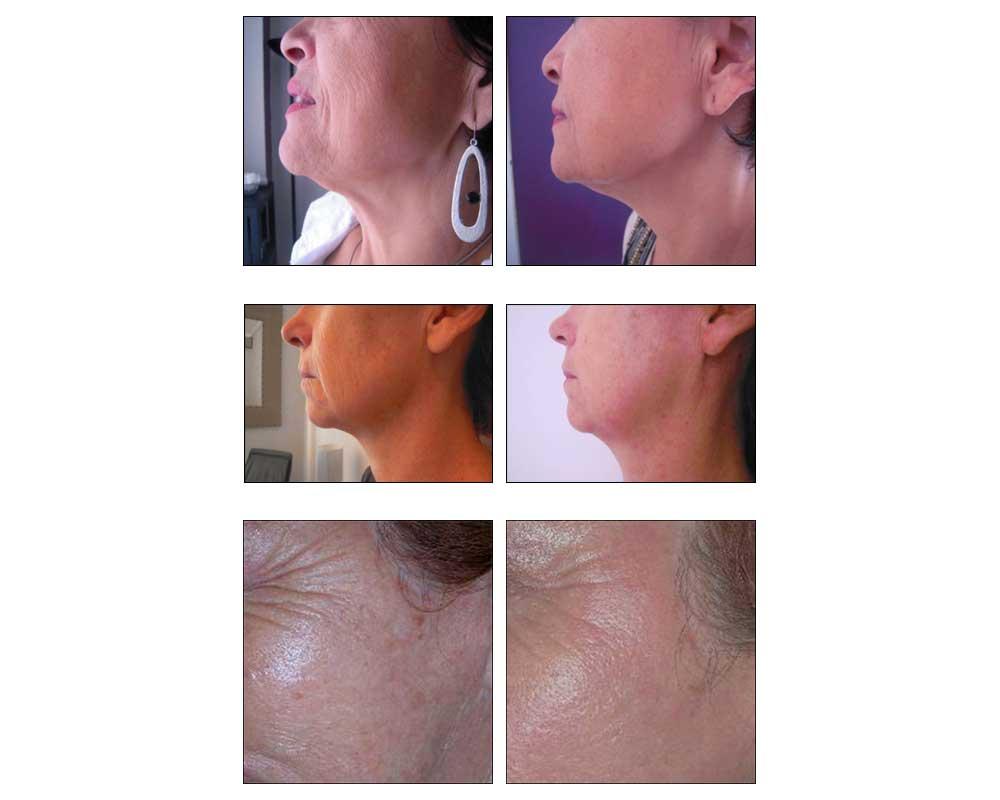 Bio peeling à Livry Gargan - Dr Wycisk, rajeunir sans injections