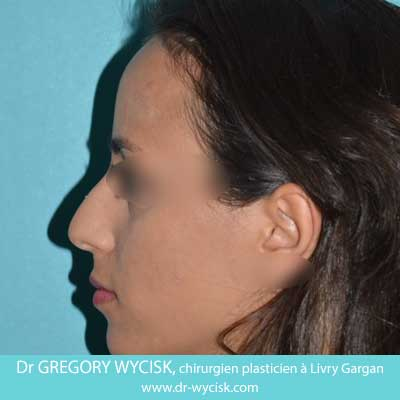 Before-Rhinoplastie