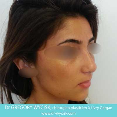 After-Rhinoplastie